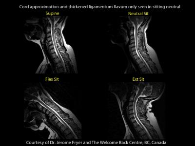 Upright MRI Findings