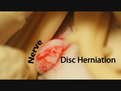 nucleus pulposus herniation