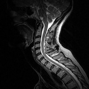 noises in the neck - Cervical Curve