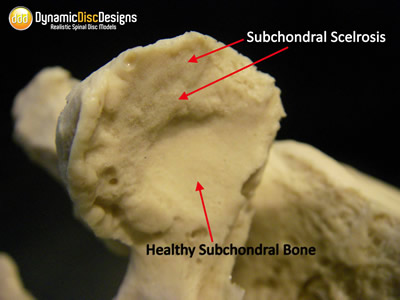 Spinal Stenosis - 3