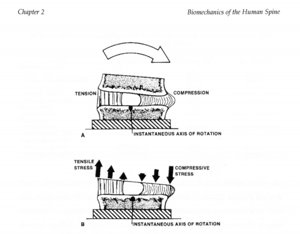 Cartilage, Intervertbral Disc, Spine