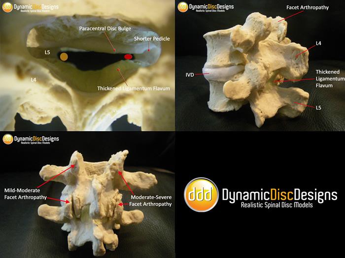 Lumbar Spinal Stenosis, Model, MRI, Ligamentum Flavum, Facet. Narrowed spinal canal