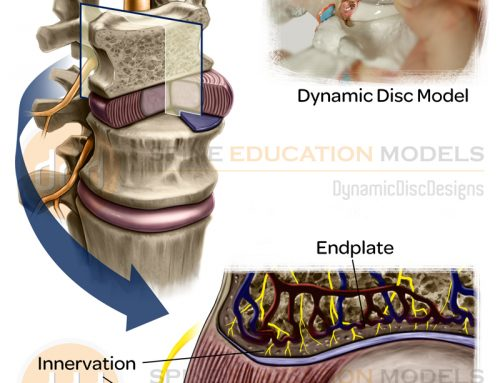 Vibration and Back Pain – New Research Showing Damage to Discs