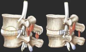 muscle spasms - diagram