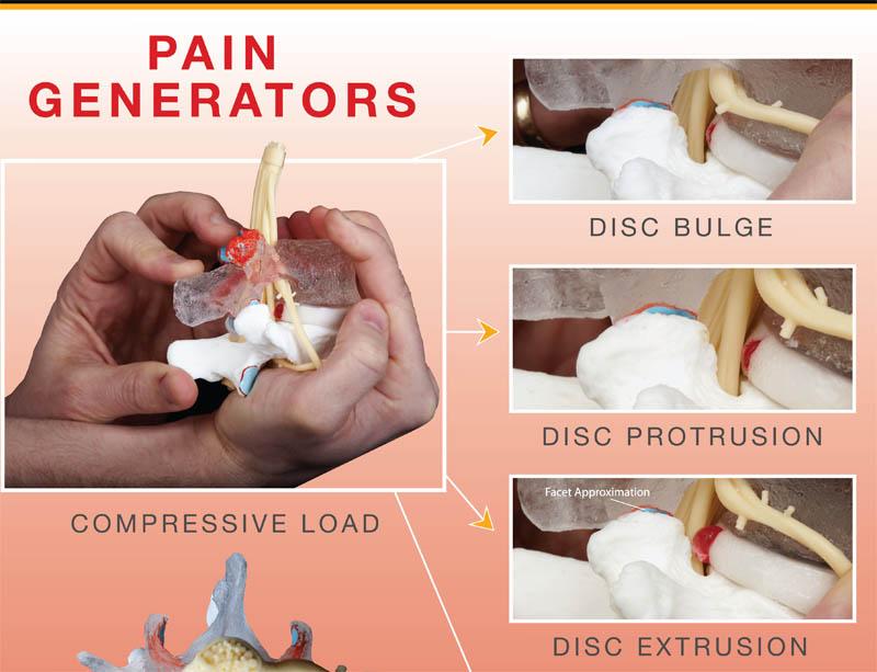Lumbar Disc Herniation - pain