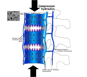 sleep and spine - hydraulics compression with endplate pores