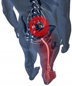lumbar disc herniation vs bulge