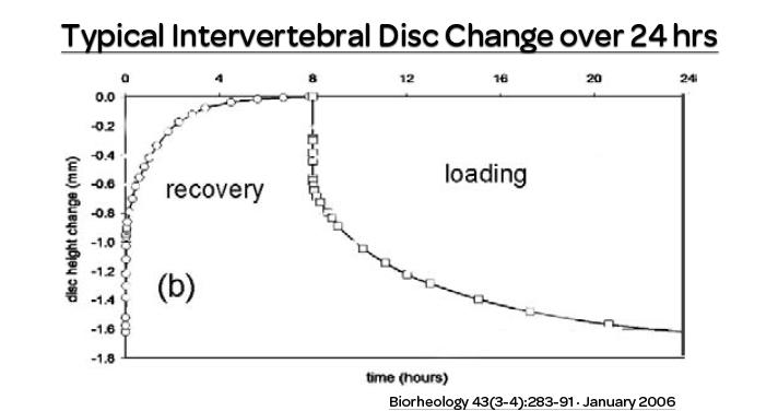 spine height, discs, intervertebral disc