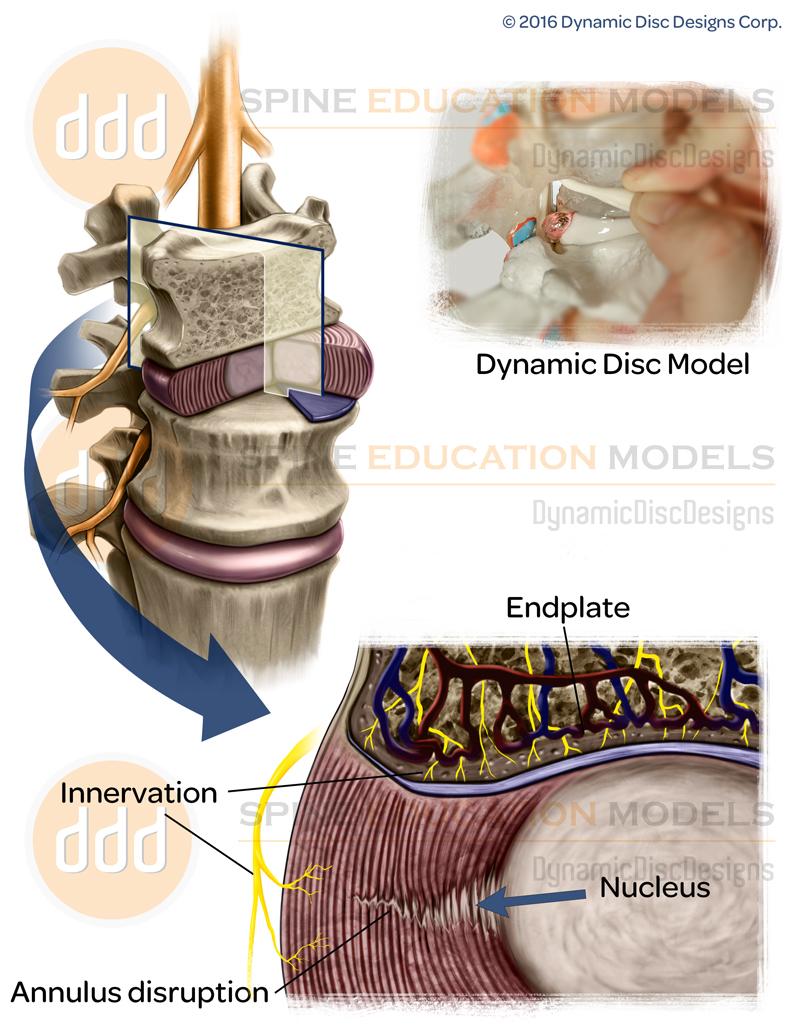 vibration research, back pain, nanaimo, chiropractor