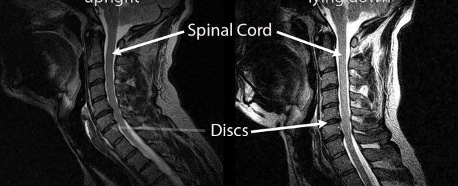 spinal cord compression, disc, treatment, nanaimo