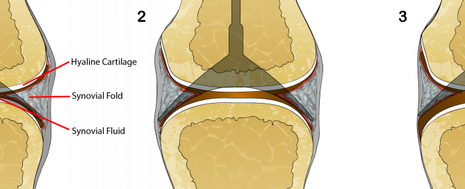 joint cracking, synovial joint, chiropractic, manipulation