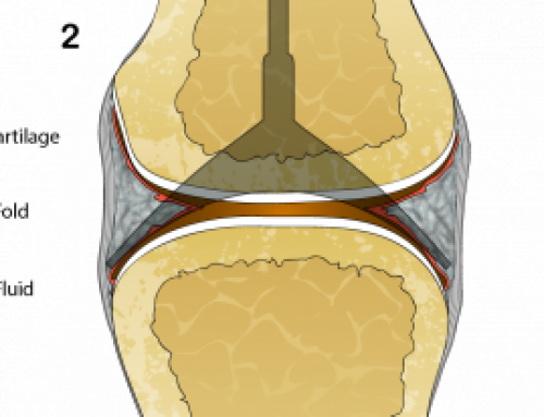 What may be causing the cracking sound of a synovial joint